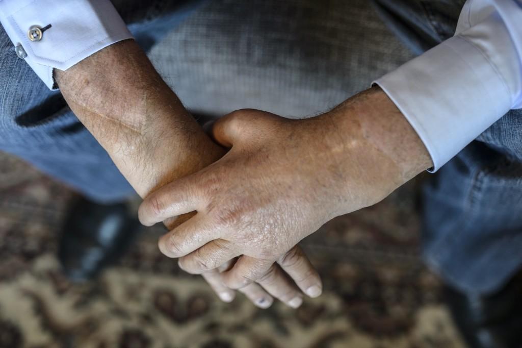 Foto von Theo Kelz und seinen transplantierten Händen.